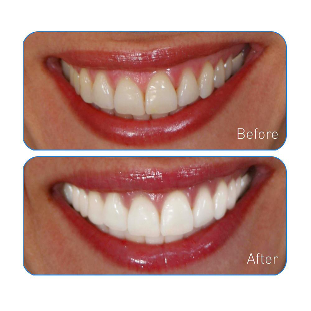 Details About Go Smile On The Go Teeth Whitening Pen